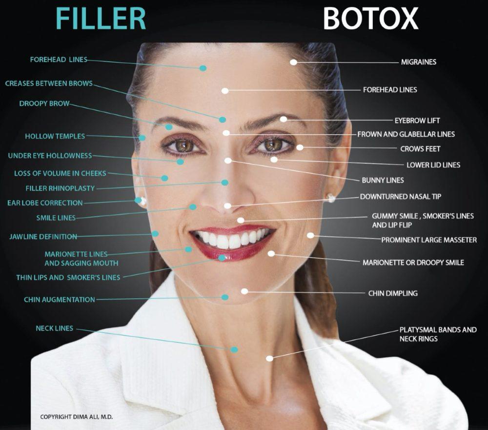 filler vs botox