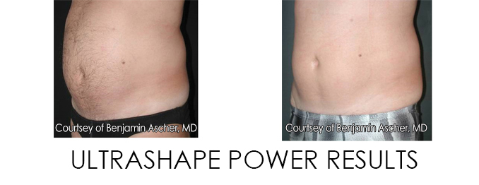 Ultra Shape power Results