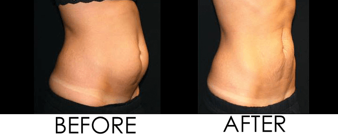 non-invasive body contouring reston